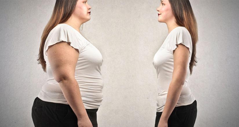 Chirurgie esthetique : Chirurgie de l'obésité en Tunisie