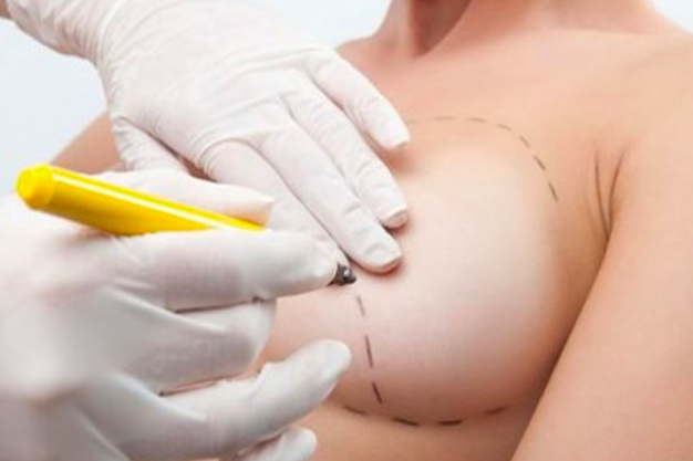 chirurgie-ethetique-en-tunisie